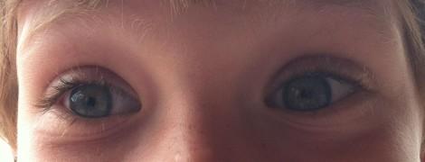 Andrew eyes 2