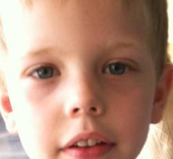 Andrew eyes 3