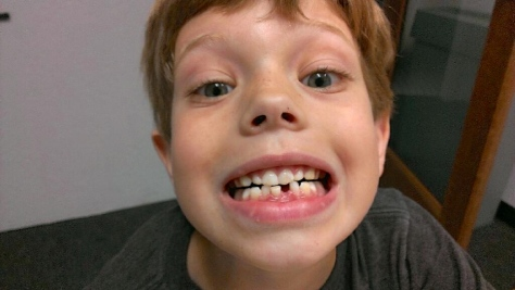 A looses his 1st tooth